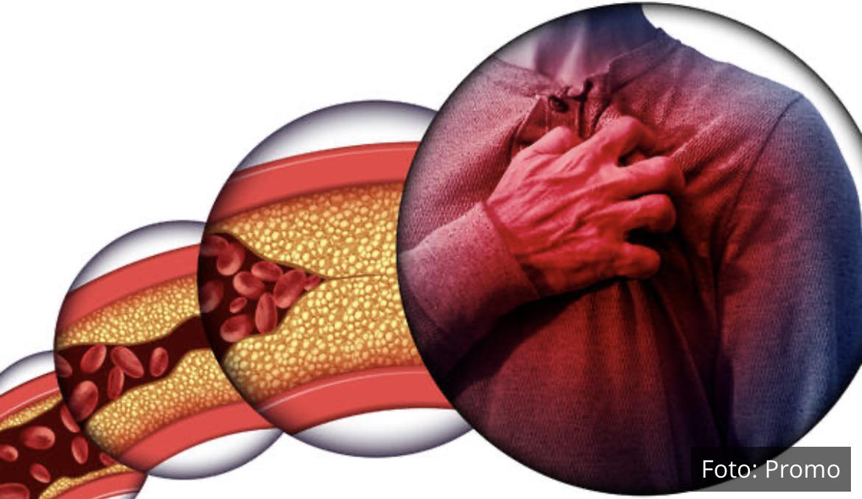 Mediteranska ishrana i ekstrakt crvenog pirinča u regulaciji lipidnog statusa i prevenciji ateroskleroze