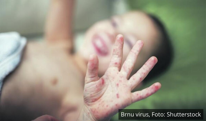NOVI VIRUS KOSI DECU U SRPSKIM VRTIĆIMA! Od bolesti i visoke temperature NE MOGU DA HODAJU PO TRI DANA