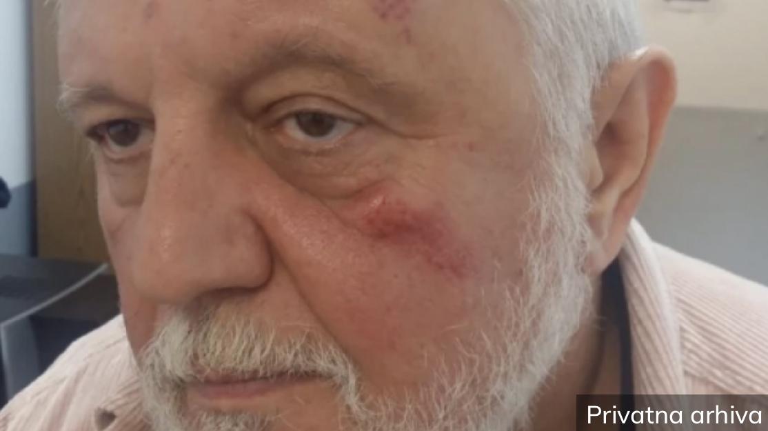 TUKAO ME JE ZBOG DARE IZ JASENOVCA, BJELOGRLIĆ JE KORUPCIONAŠ Jezivi detalji brutalnog prebijanja Gage Antonijevića