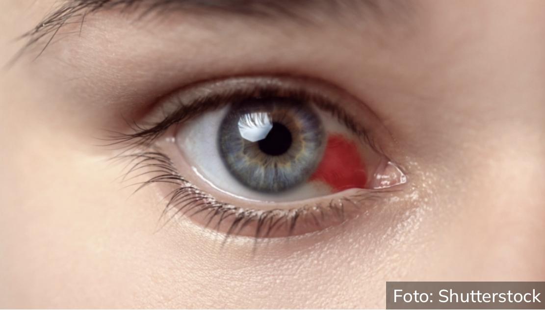 OBRATITE PAŽNJU: Ako vam pukne kapilar u oku uz ove simptome, pod hitno se morate javiti lekaru!